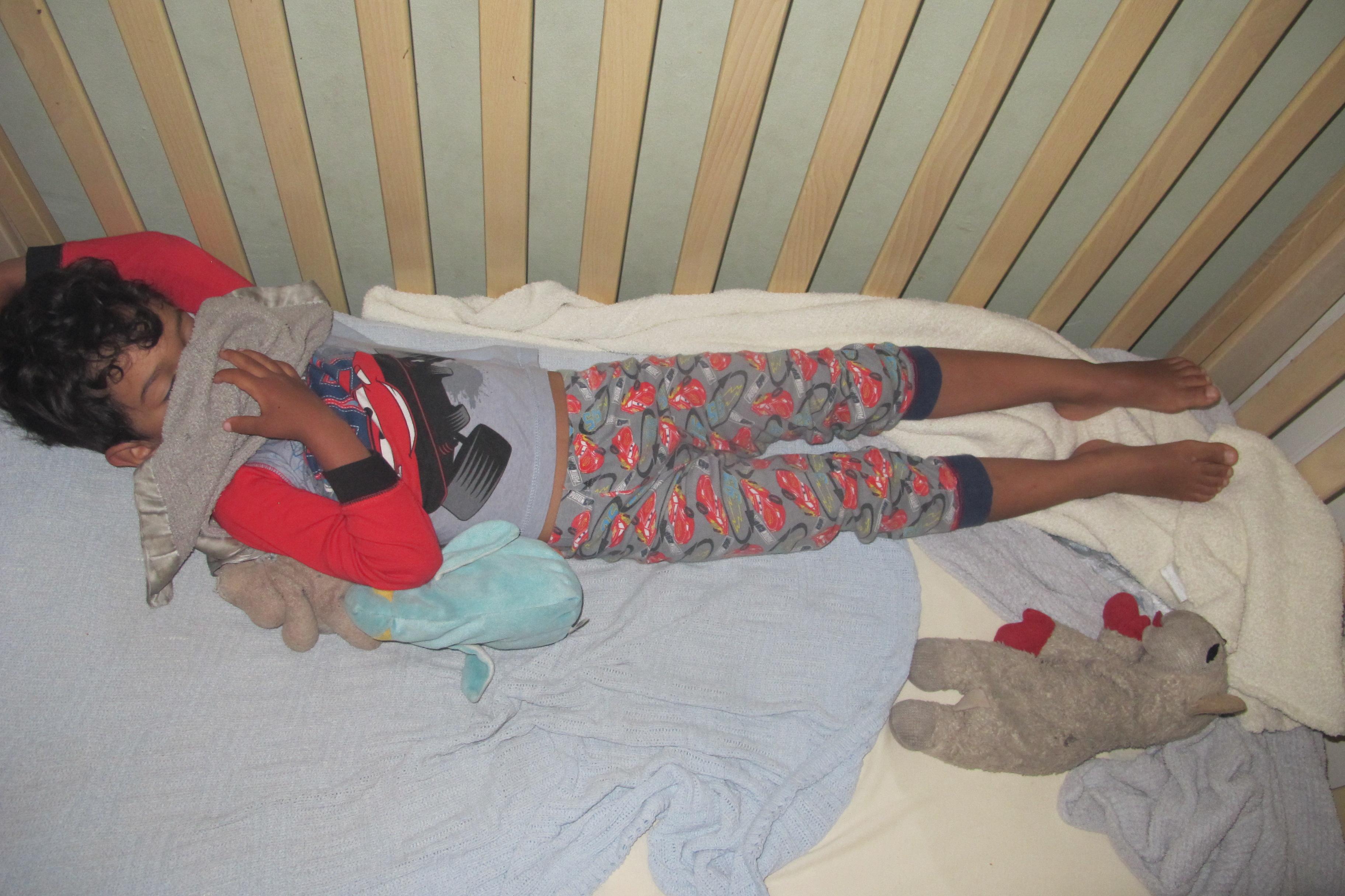 babie-boys-nude-sleeping-diagrams-of-acupuncture-facial-rejuvenation